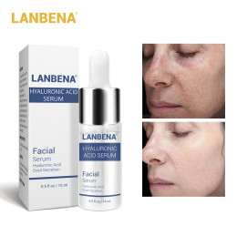 LANBENA hyaluronic acid serum Blackhead Removal Moisturizing Acne Treatment Skin Care Repair Whitening Anti-Aging Wrinkle 15ml